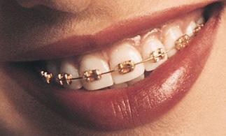 braces-gold