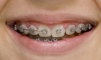 braces-silver