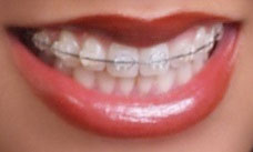 ceramicbraces